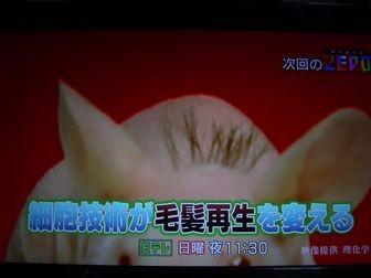 東京理科大学教授の辻孝研究チームが、マウスの成体毛包由来幹細胞を利用した毛髪再生の実証実験に成功